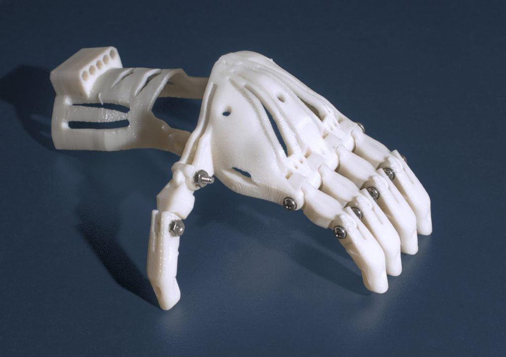 3D_Printed_Prosthetic_Hand_-_blue